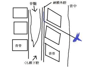 硬膜外麻酔の図